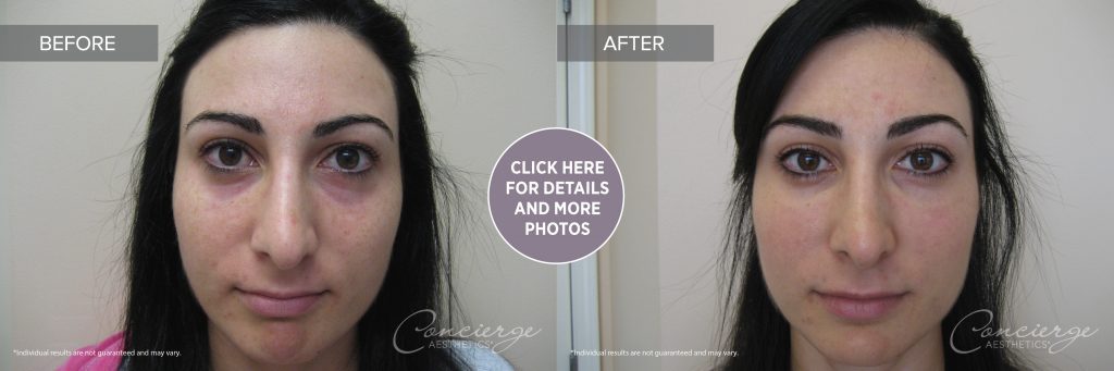 Before And After Photos Juvederm Ultra Under The Eyes