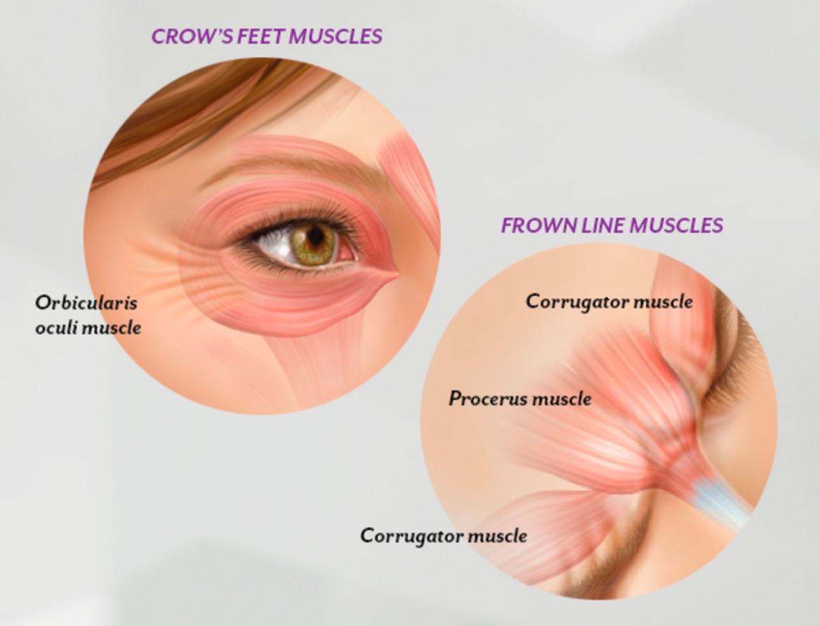 Botox Cosmetic - Irvine