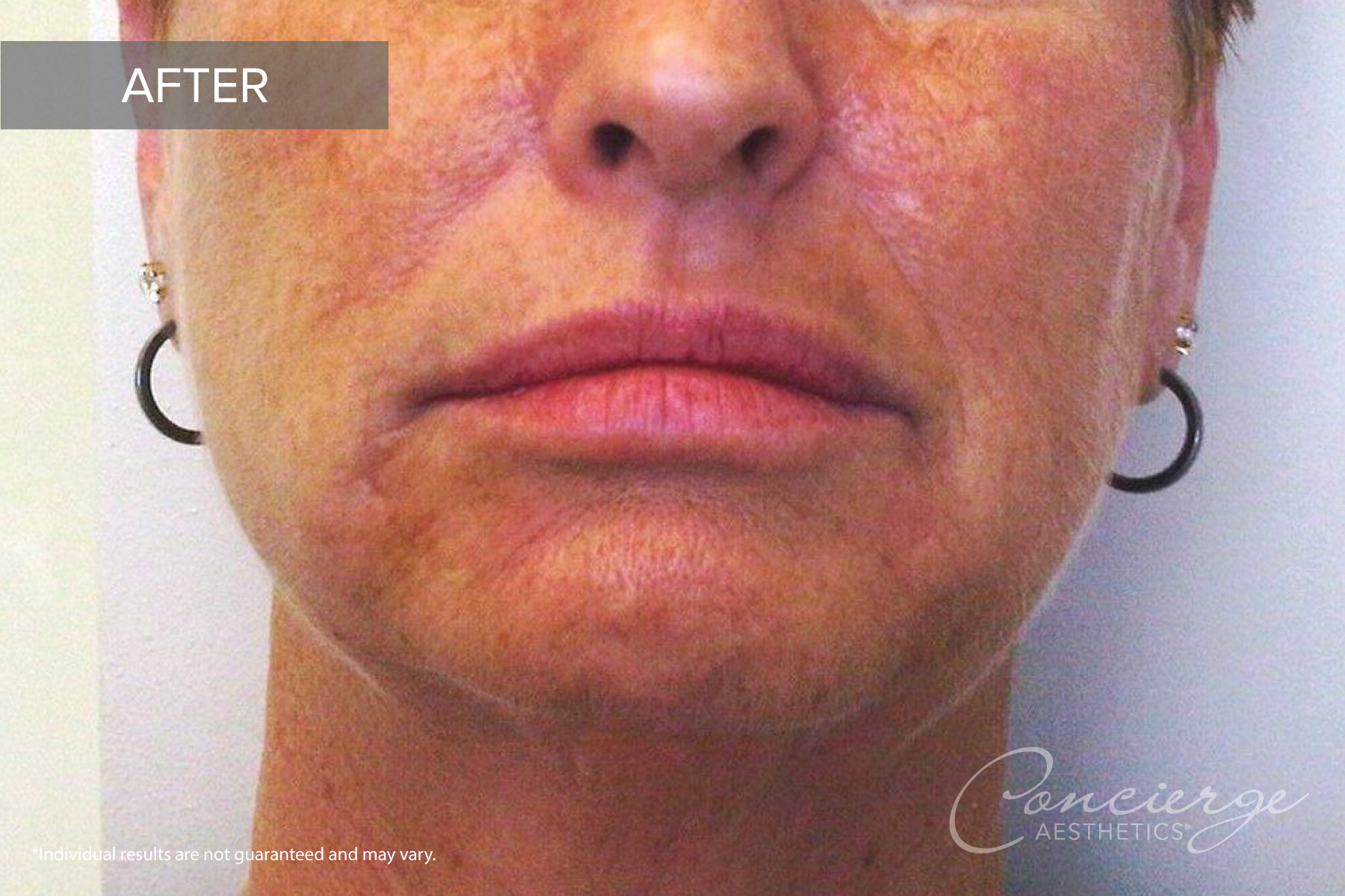 Juvederm and Juvederm Voluma - Before and After Photos