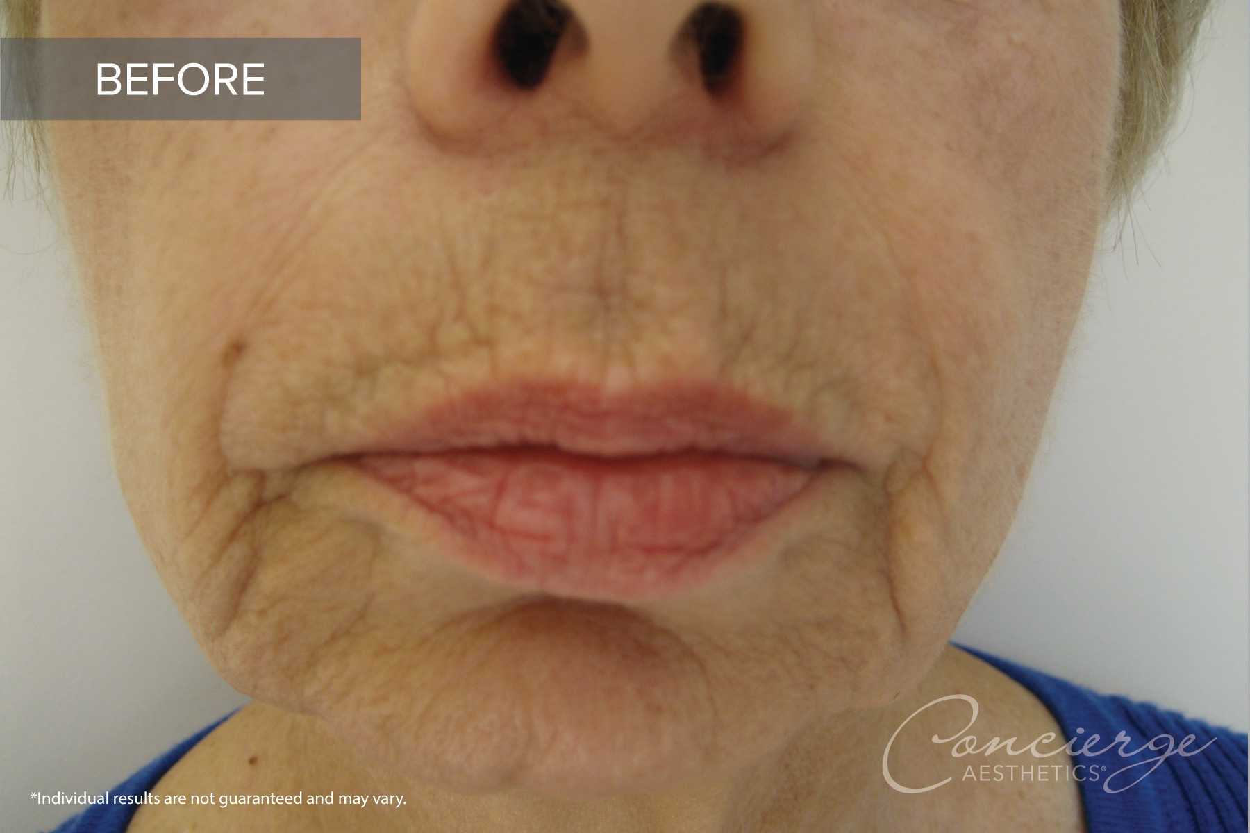 Juvederm Ultra - Lips - Before and After