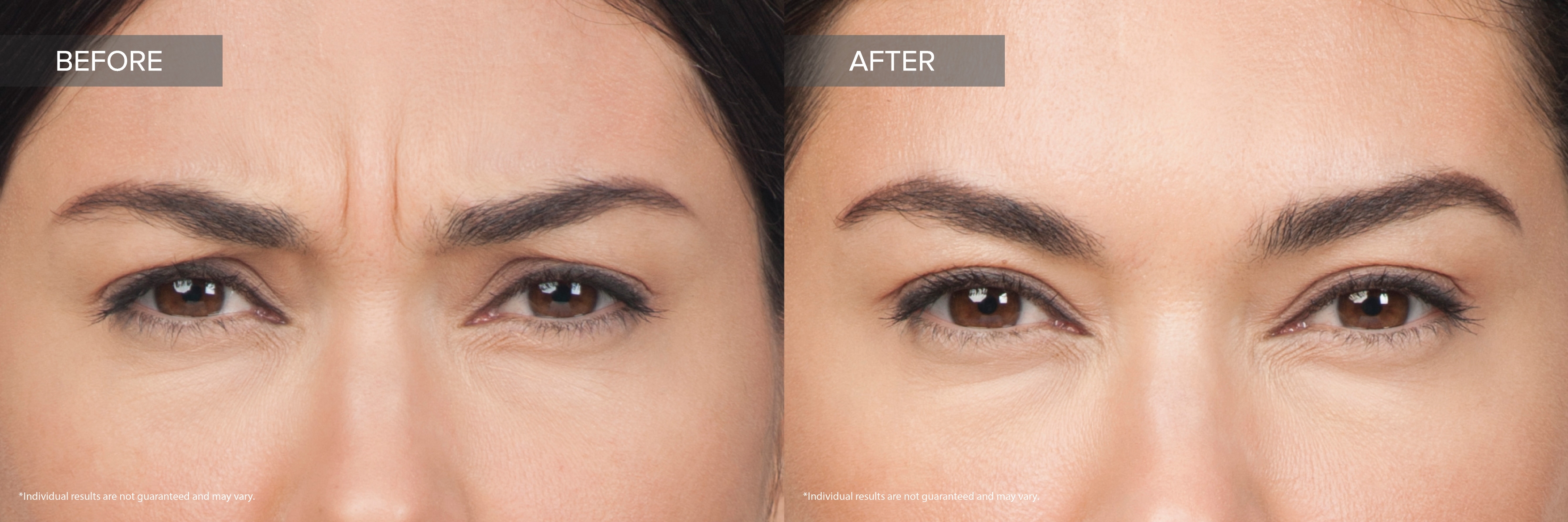 Botox Cosmetic - Moderate Frown Lines