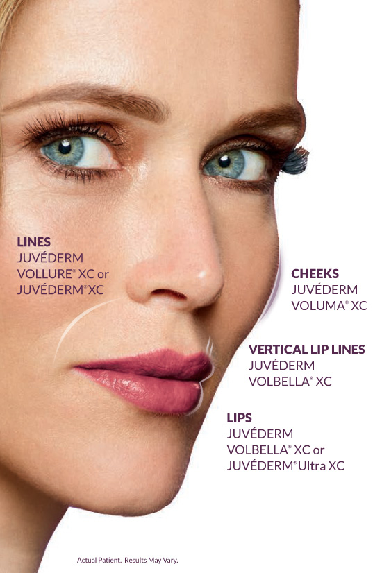 Juvederm Collection of Fillers - Concierge Aesthetics - Irvine