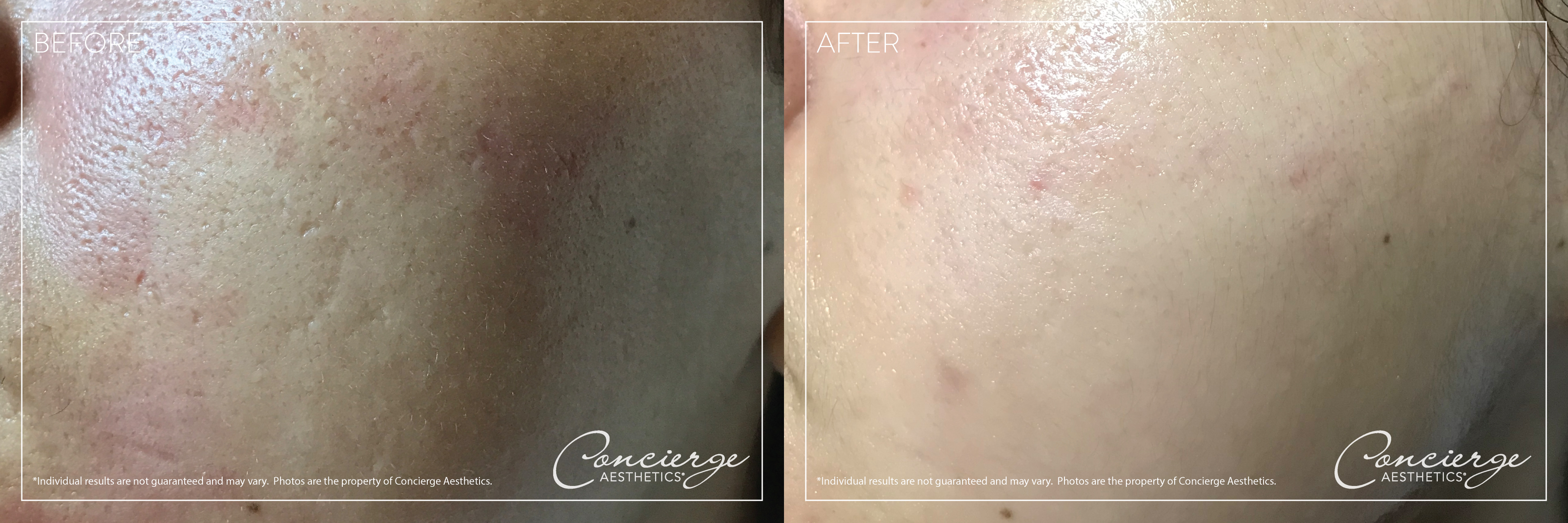 Dermapen - Before and After - Concierge Aesthetics, Irvine