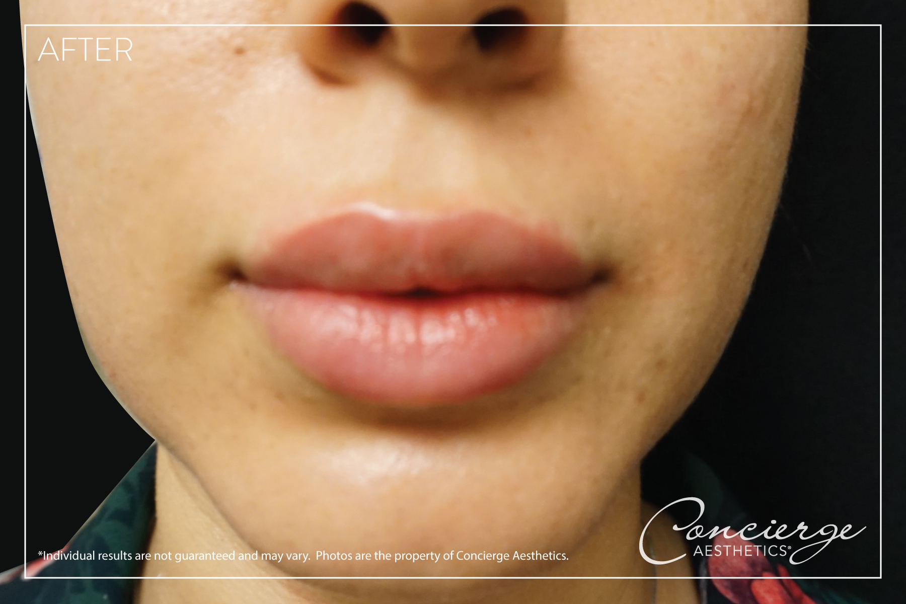 Concierge Aesthetics - Before and After Juvederm Volbella