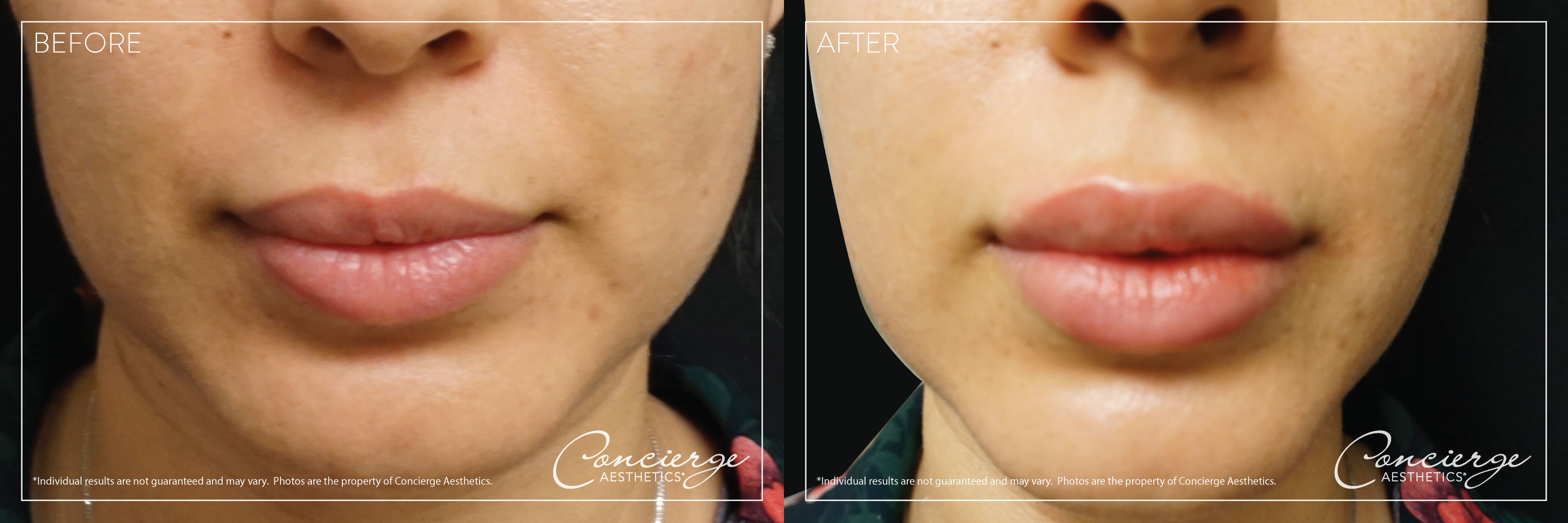 Concierge Aesthetics Before and After Juvederm Volbella