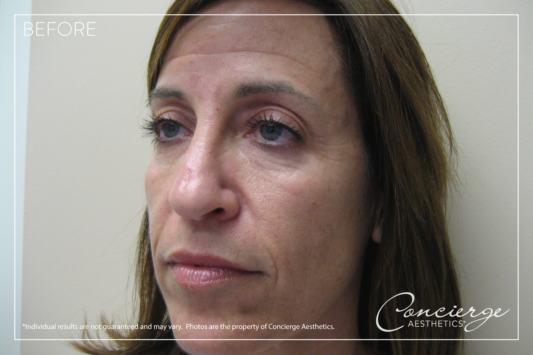 Mommy Makeover - Before and After Photos - Concierge Aesthetics