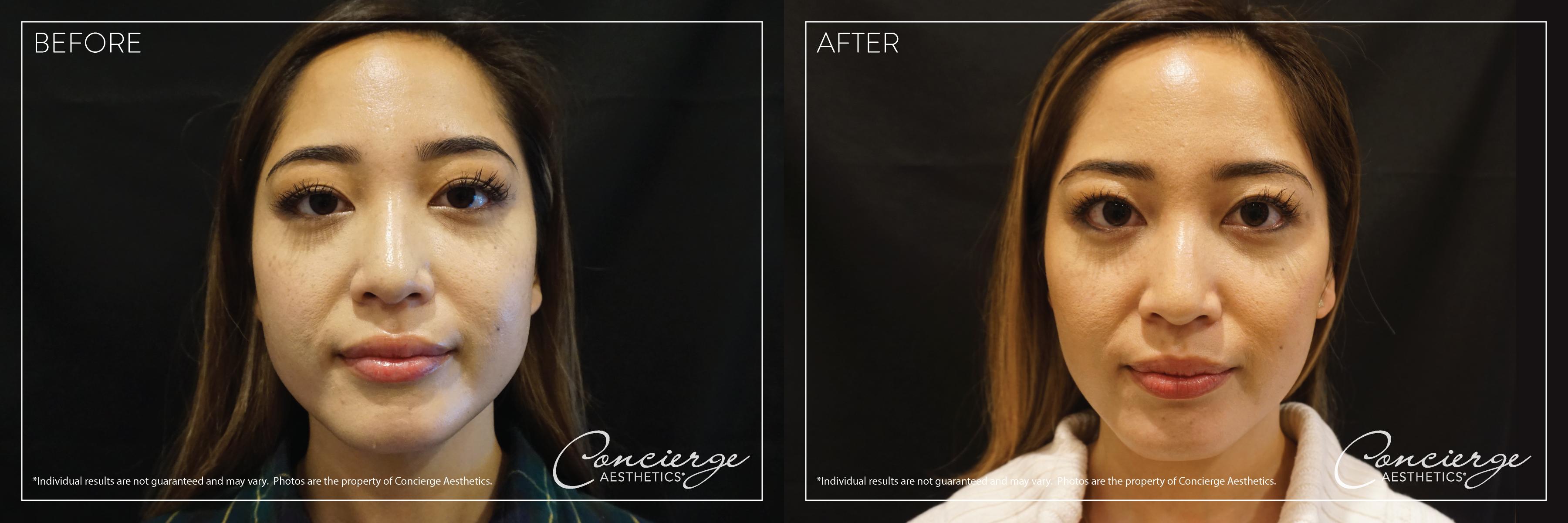 Botox Cosmetic - Masseter - Concierge Aesthetics - Irvine