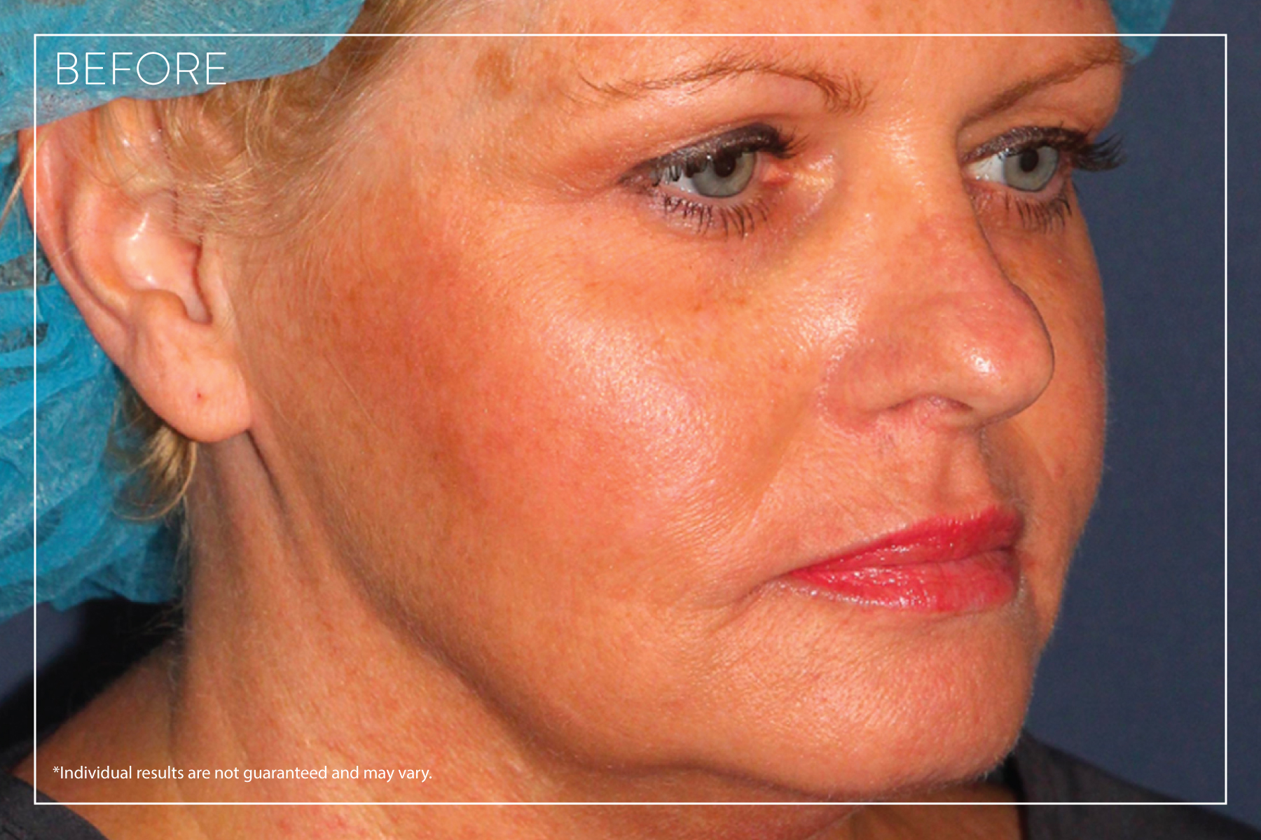 InstaLift Before Photo - Concierge Aesthetics - Irvine - Before and After Photo
