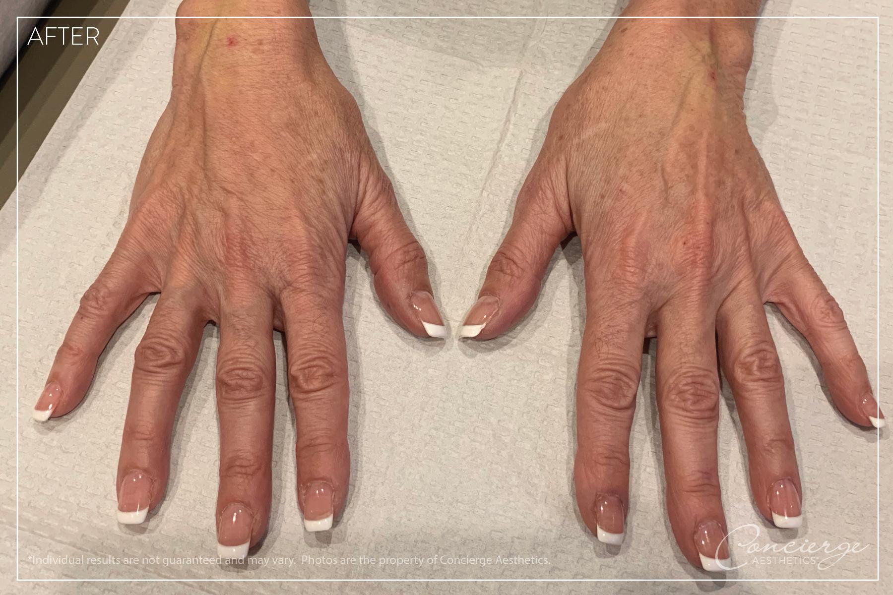 Hand Rejuvenation - Juvederm Ultra Plus - Concierge Aesthetics - Irvine