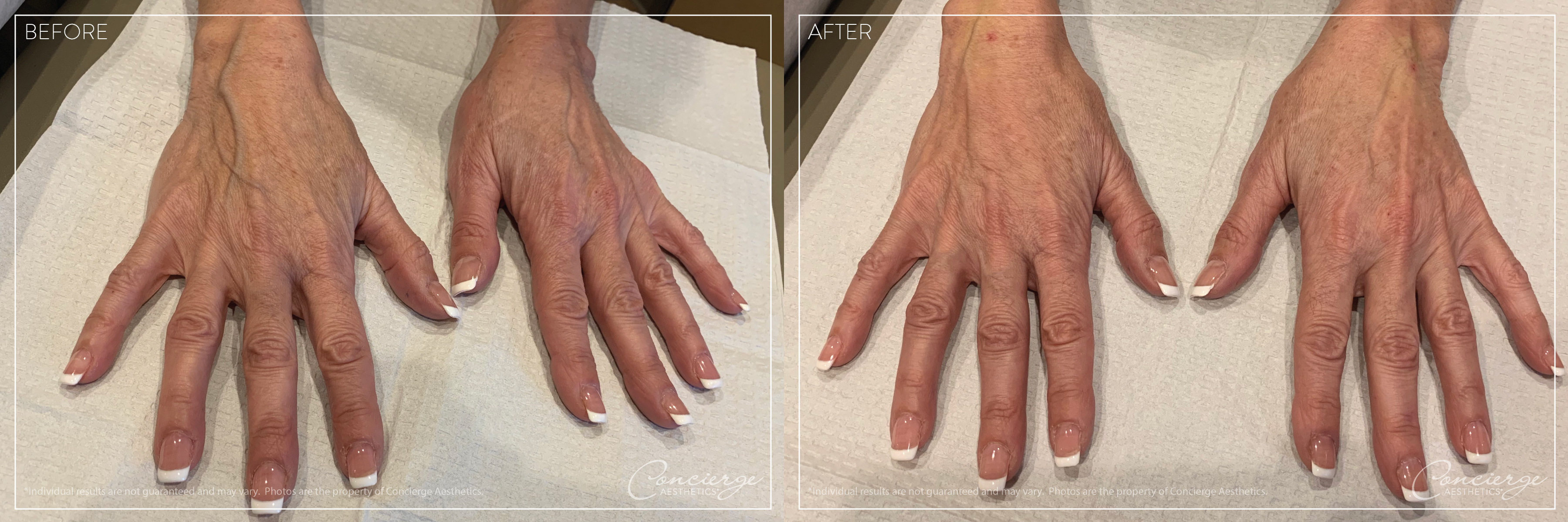 Hand Rejuvenation - Juvederm Ultra Plus - Concierge Aesthetics - Irvine