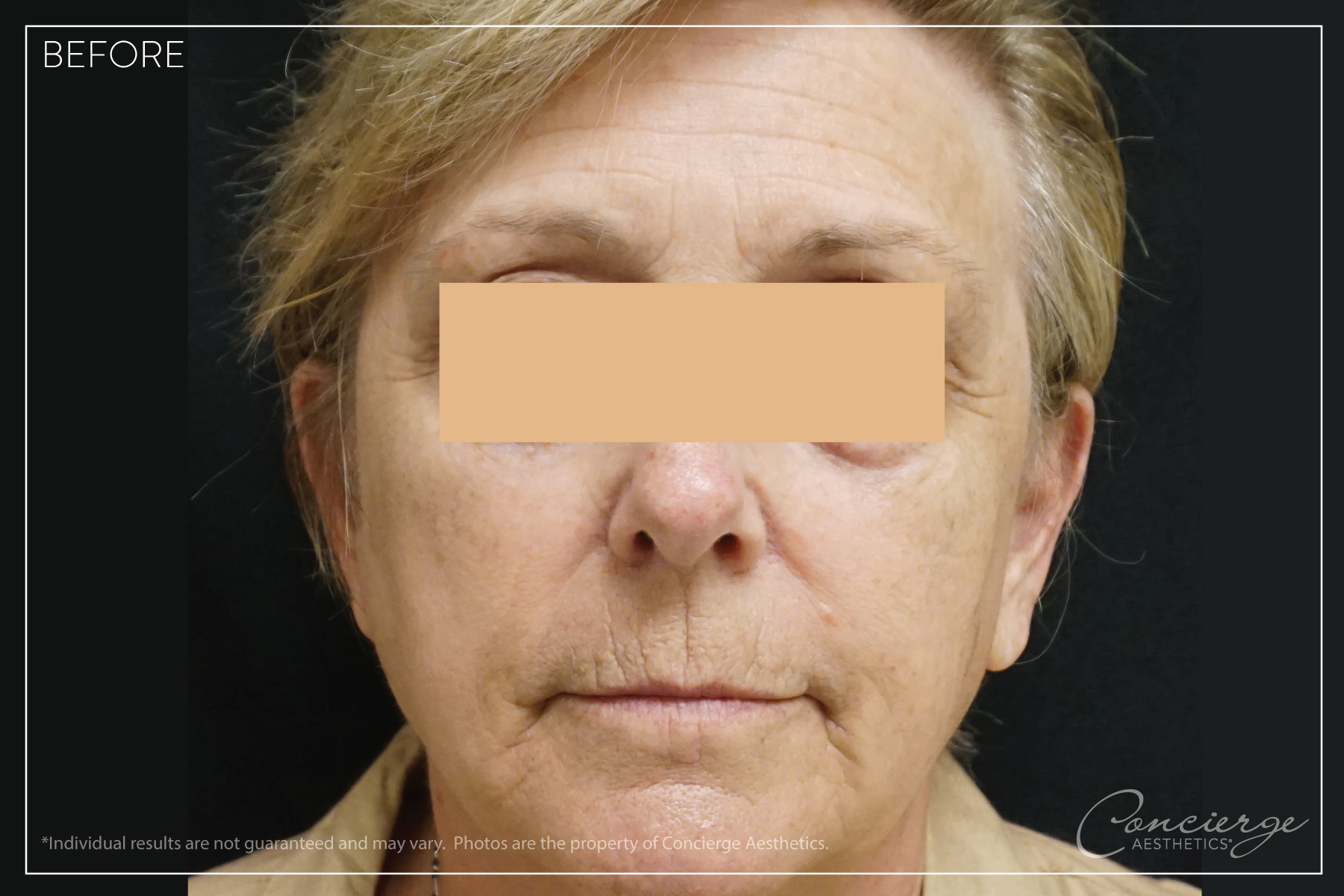 Before Photo - Juvederm Voluma and Botox Cosmetic