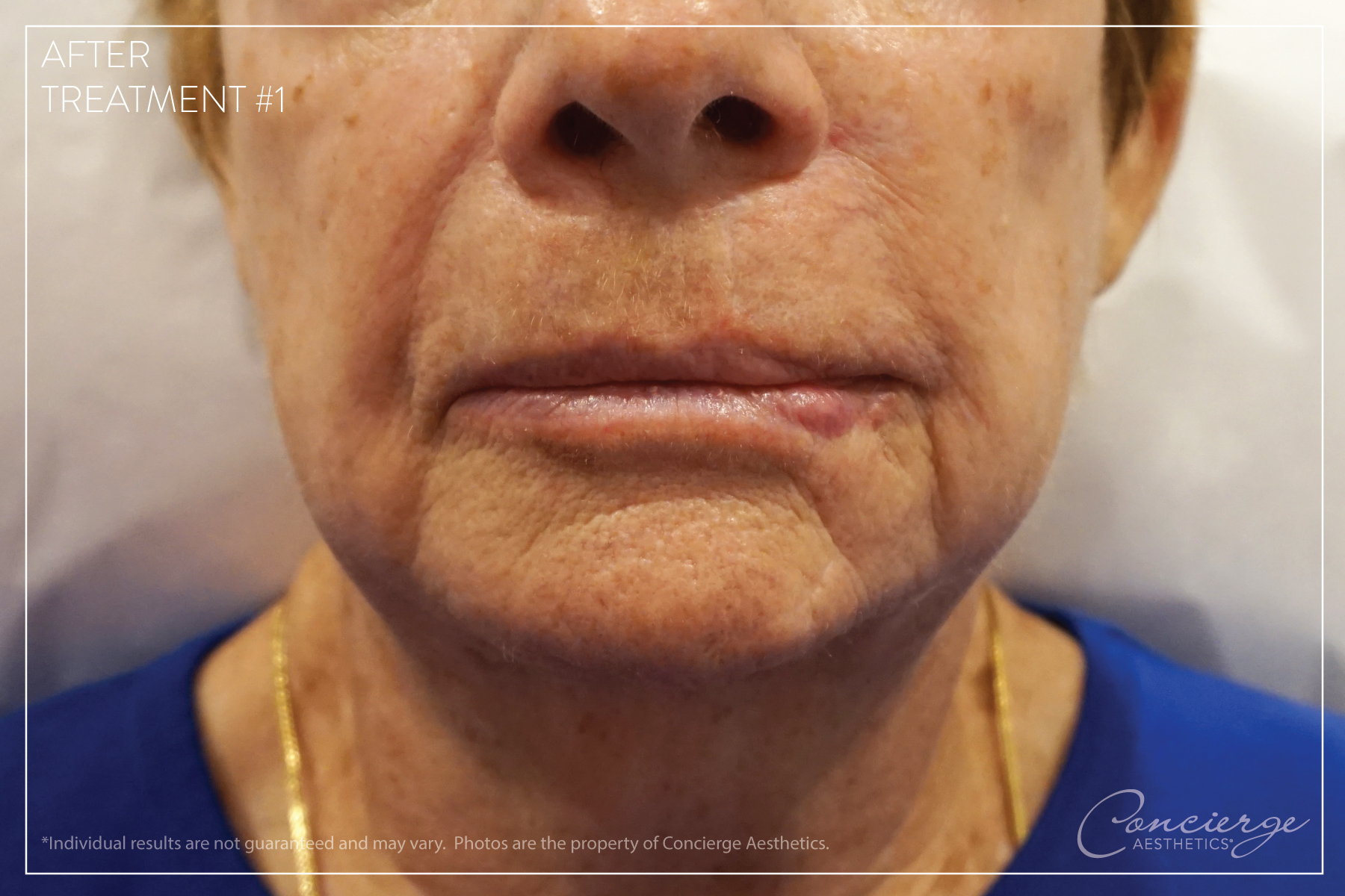 After: BOTOX® Cosmetic and JUVÉDERM® - Lips and Marionette