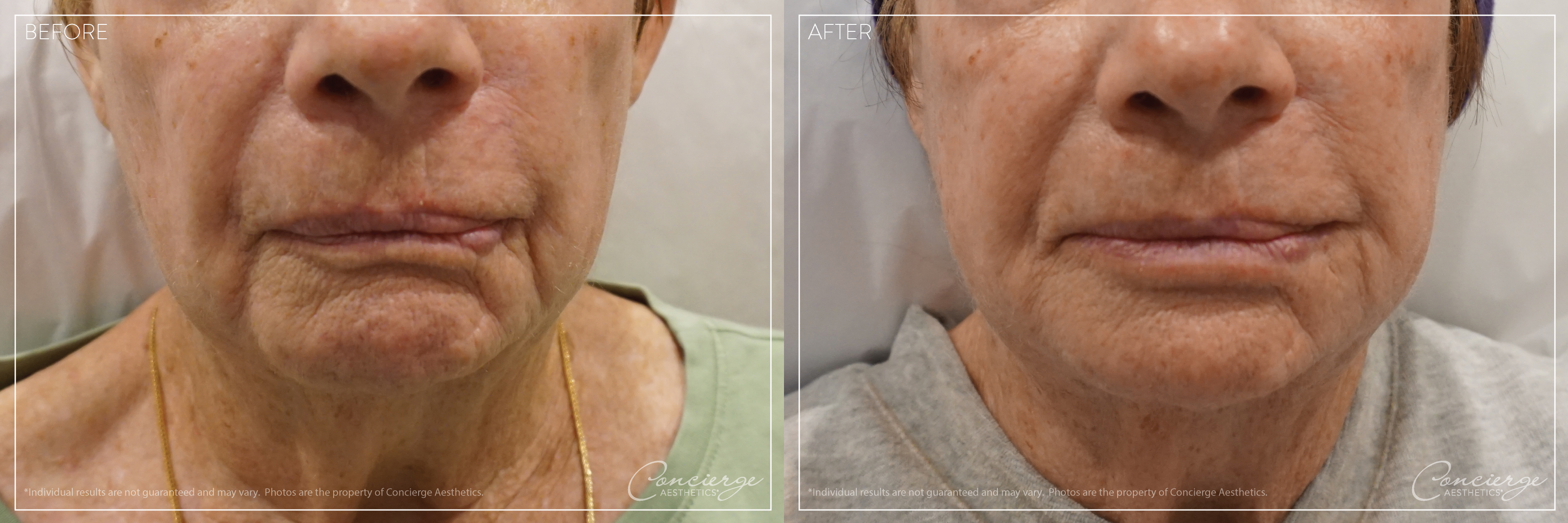 Before and After: BOTOX® Cosmetic and JUVÉDERM® - Lips and Marionette