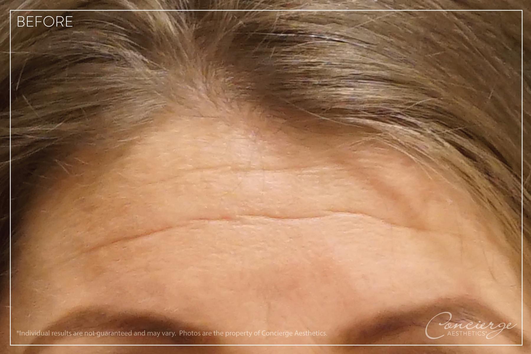 Before: Botox Cosmetic - Forehead Lines   Concierge Aesthetics