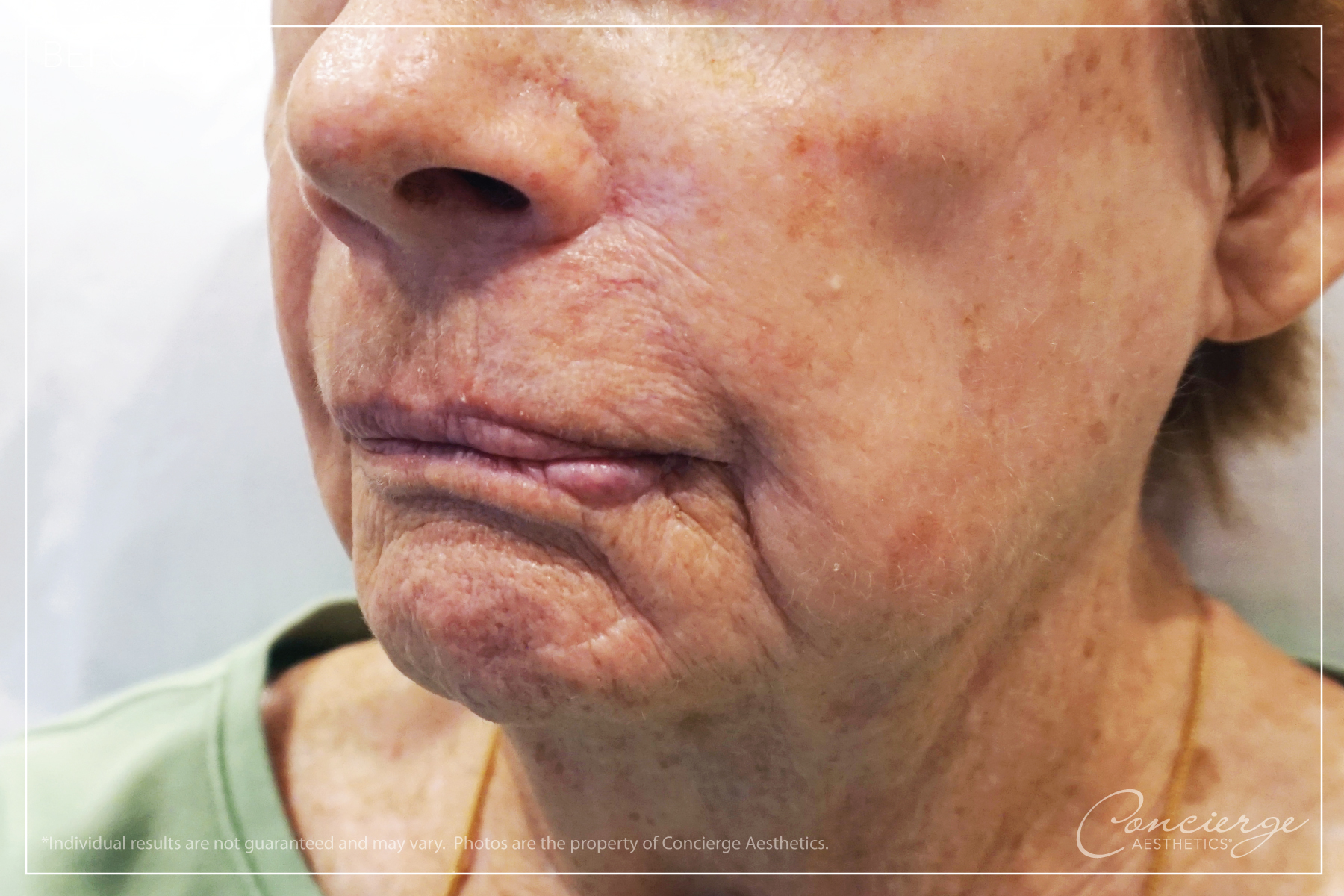 Before: BOTOX® Cosmetic and JUVÉDERM® - Lips and Marionette