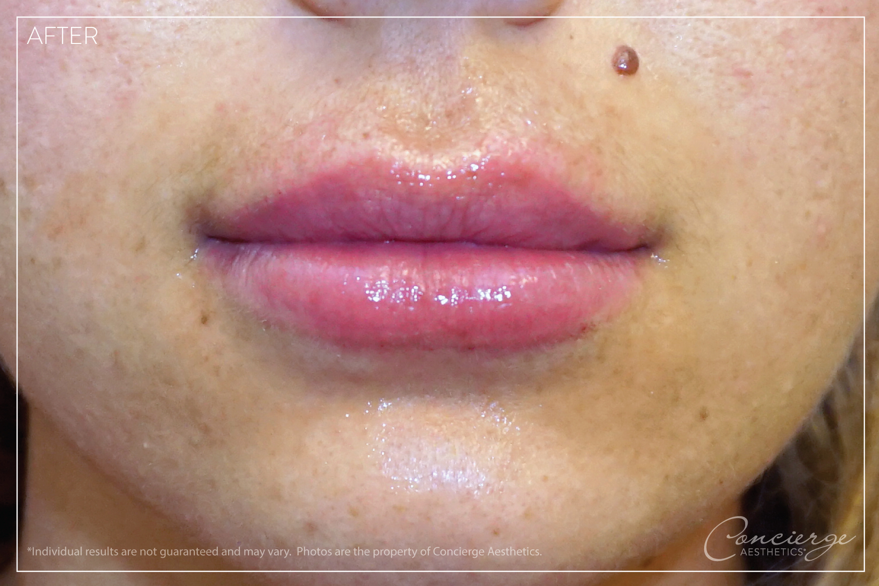After: Juvederm Volbella and Vollure - Lips | Concierge Aesthetics