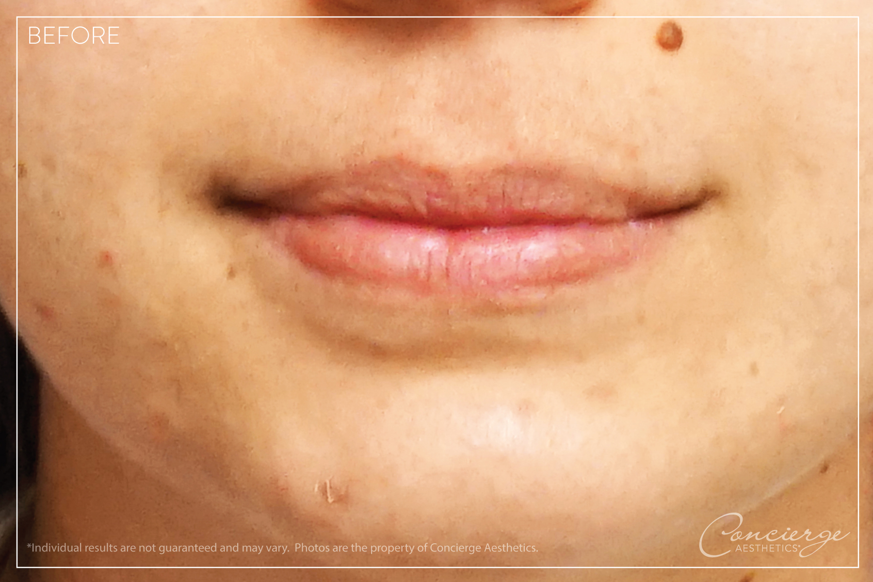 Before: Juvederm Volbella and Vollure - Lips | Concierge Aesthetics