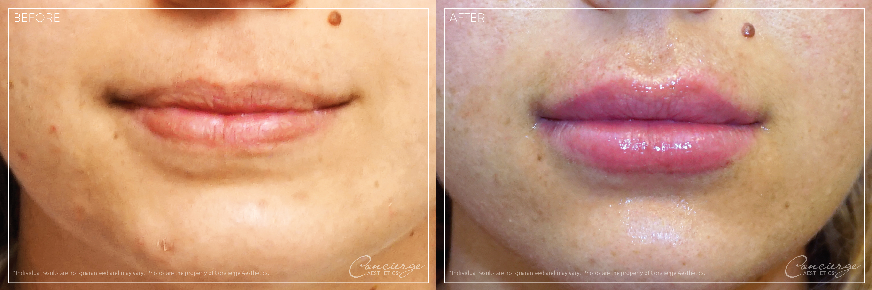 Before and After: Juvederm Volbella and Vollure - Lips | Concierge Aesthetics