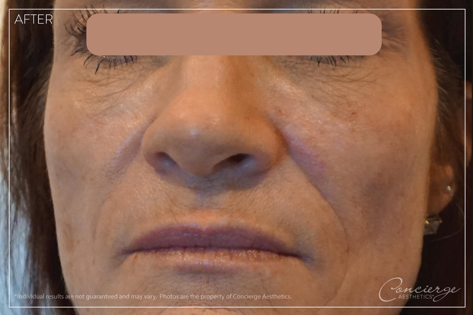 After: Under Eyes and Nasolabial Folds | Concierge Aesthetics