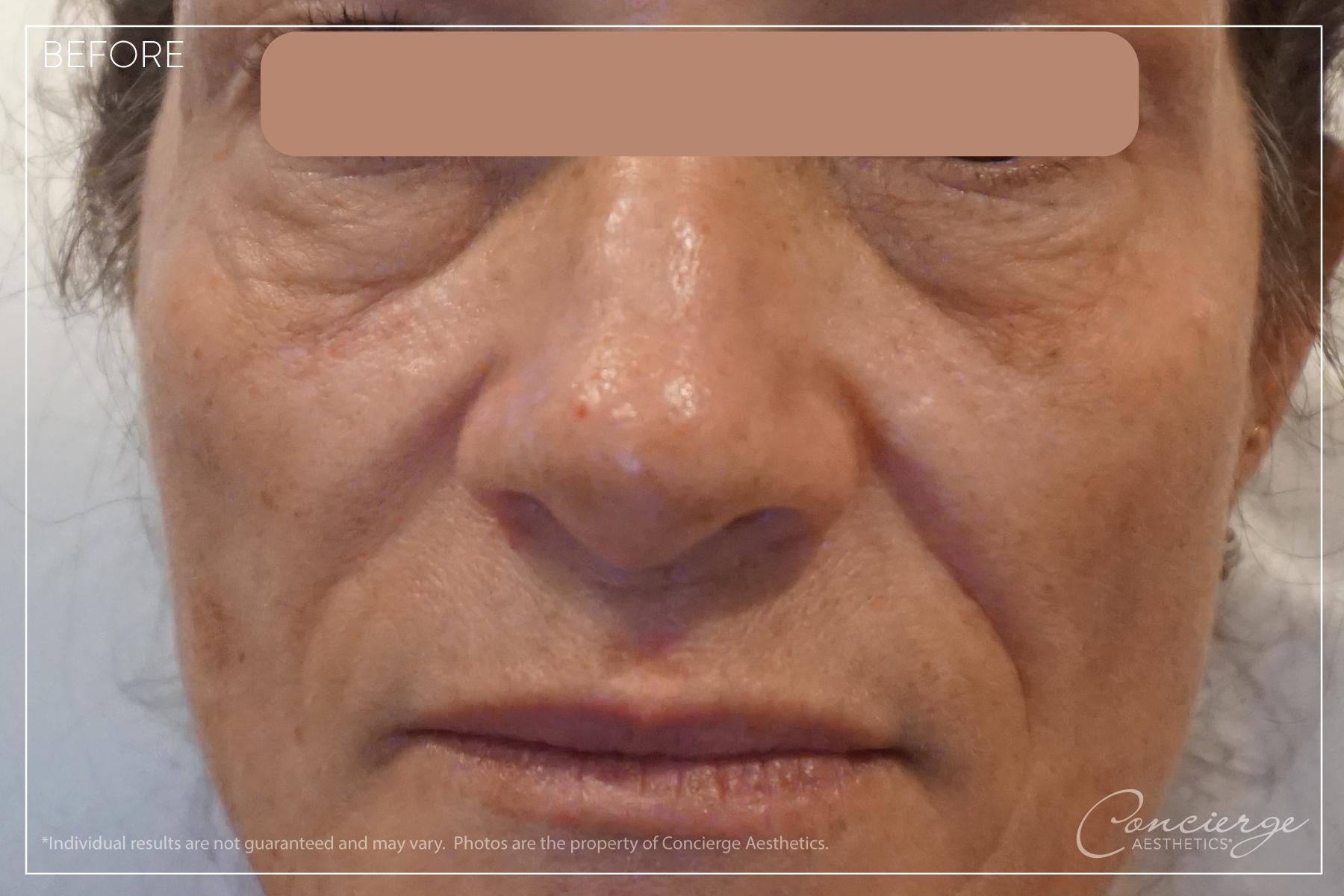 Before : Under Eyes and Nasolabial Folds | Concierge Aesthetics