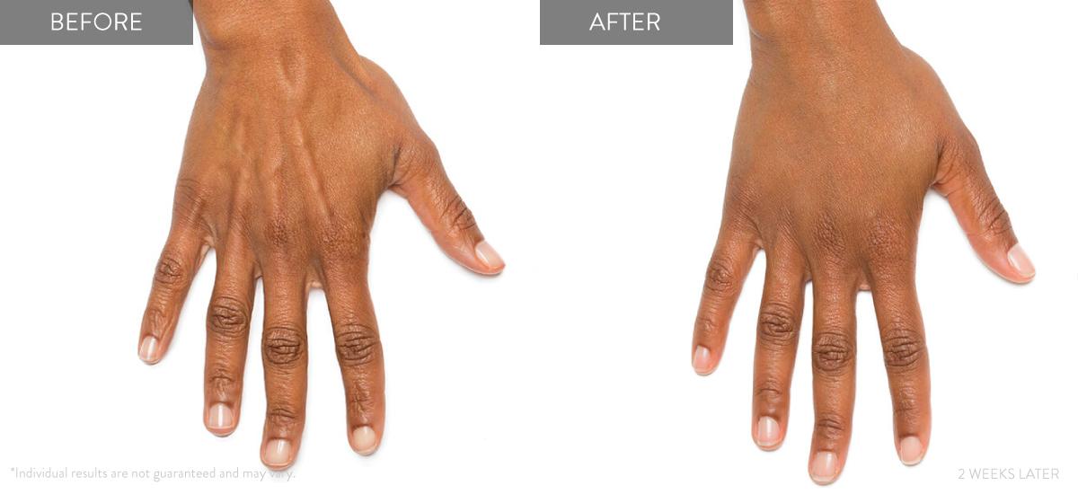 Radiesse Filler - Before After Photos Hands - Concierge Aesthetics