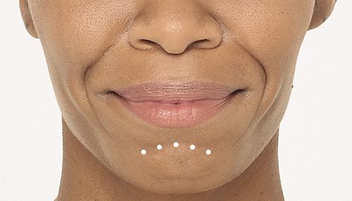Radiesse - Chin Wrinkles Treatment - Concierge Aesthetics