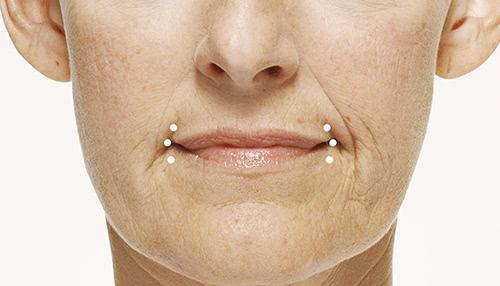 Radiesse - Corner of the Mouth Lines Treatment - Concierge Aesthetics