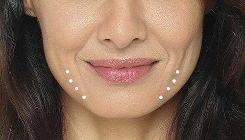Radiesse - Pre-Jowl Lines Treatment - Concierge Aesthetics