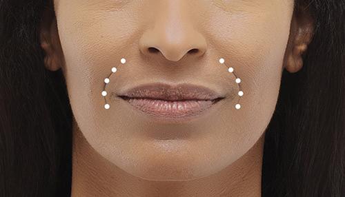 Radiesse - Smile Lines Treatment - Concierge Aesthetics