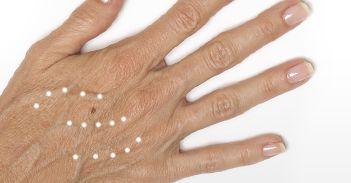 Radiesse - Restoring Lost Volume Hand Treatment - Concierge Aesthetics