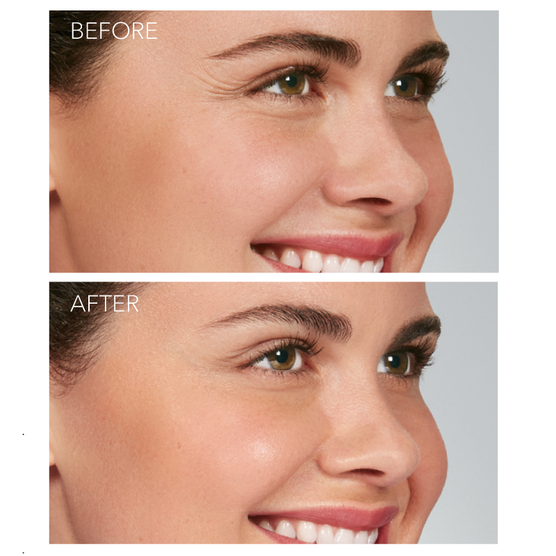 Botox Cosmetic - Crows Feet Lines - Before and After