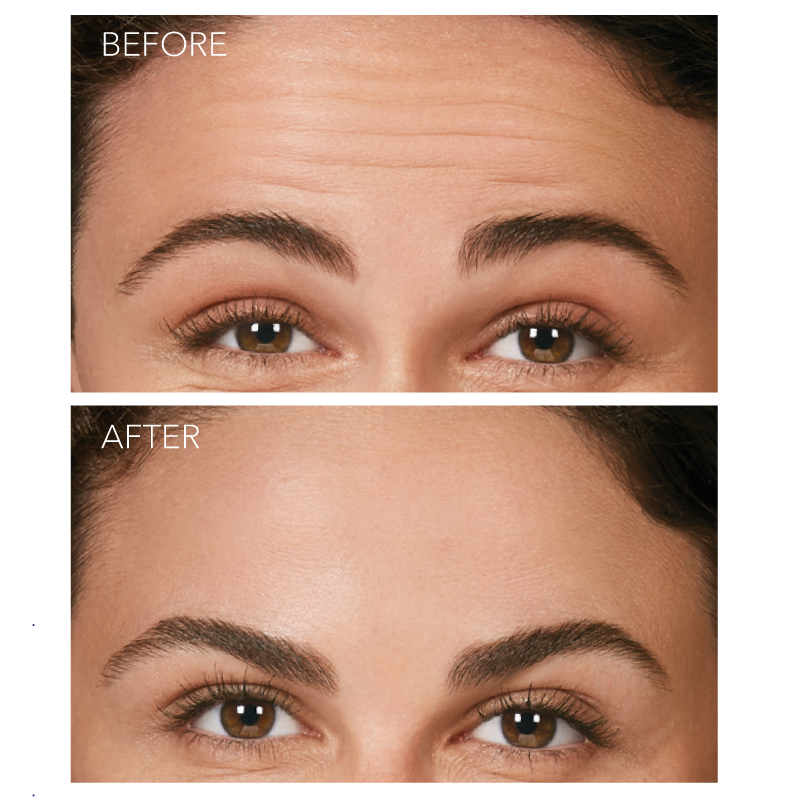 Botox Cosmetic - Forehead Lines - Before and After