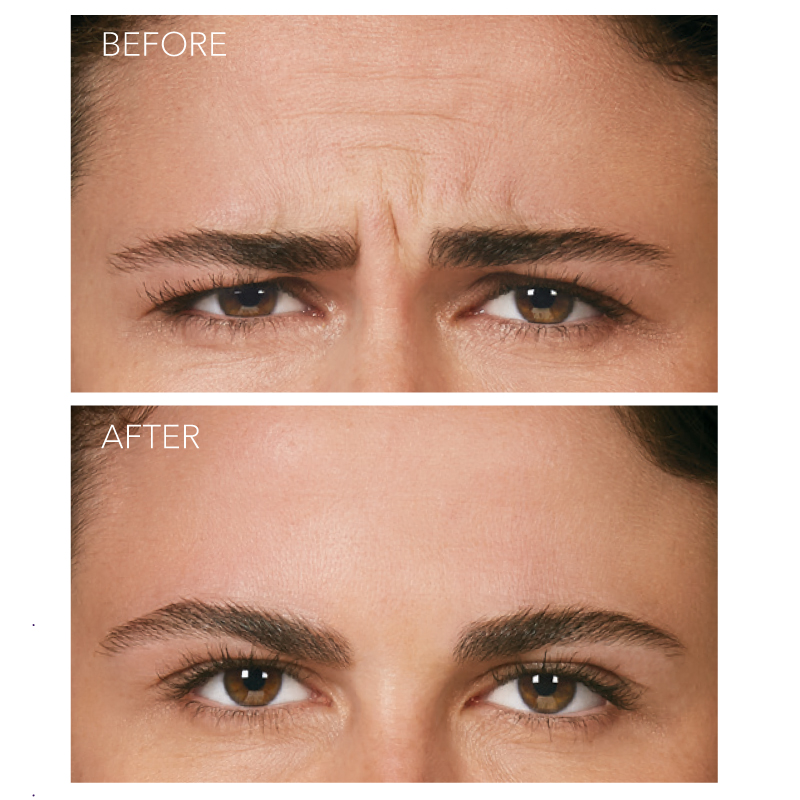 Botox Cosmetic - Frown Lines - Before and After