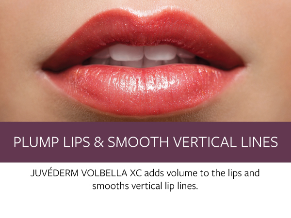 Plump Lips and Smooth Lines - Concierge Aesthetics - Irvine