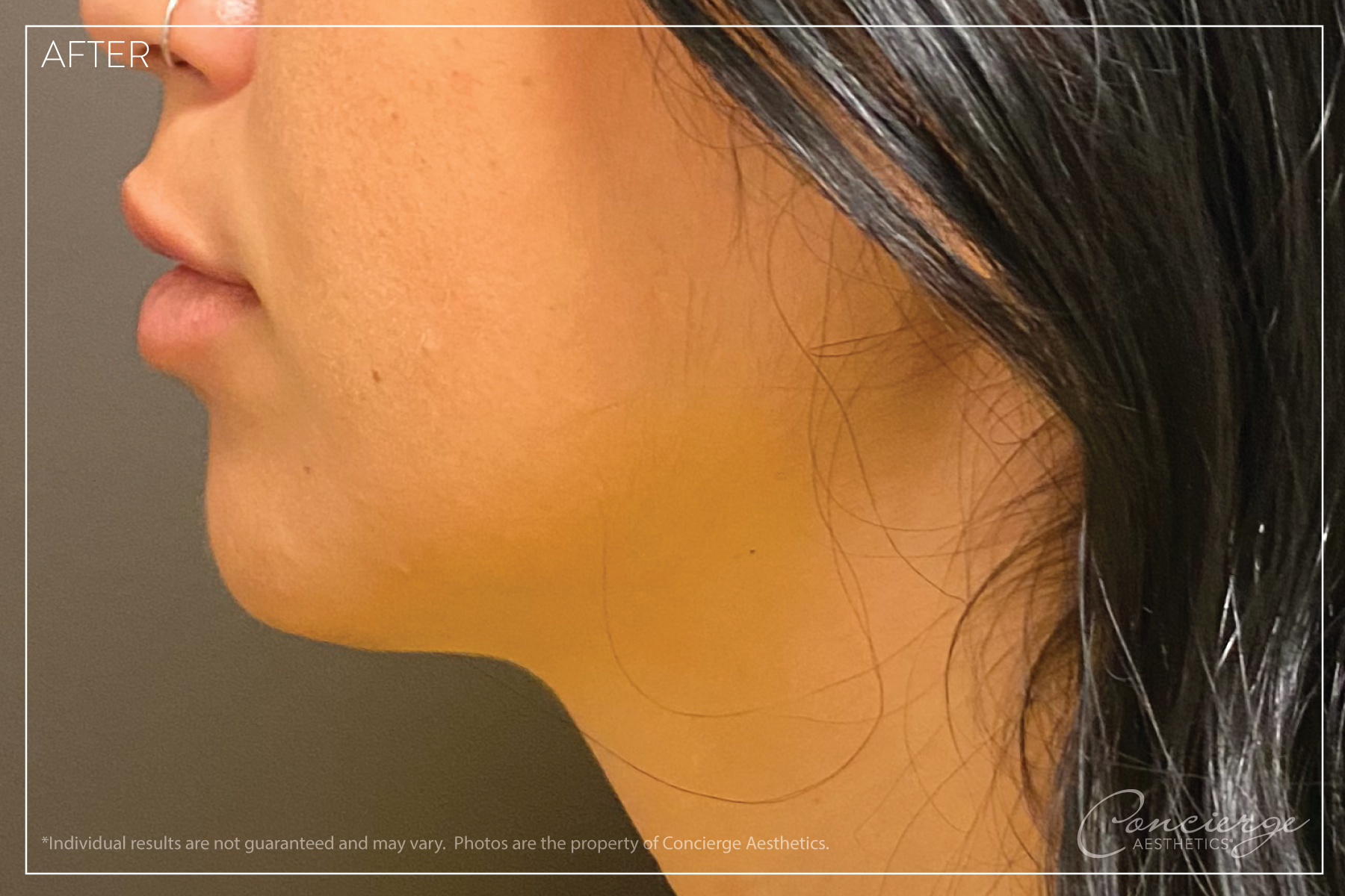 Juvederm Ultra - Lips and Chin - After Photo - Concierge Aesthetics - Irvine