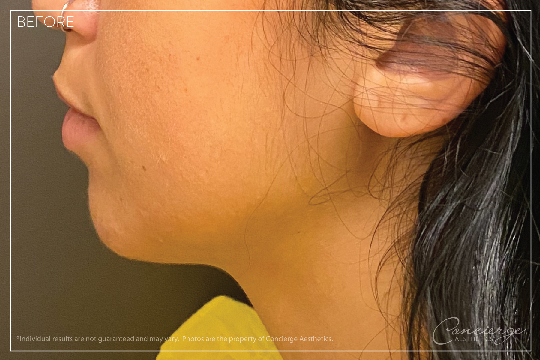 Juvederm Ultra - Lips and Chin - Before Photo - Concierge Aesthetics - Irvine