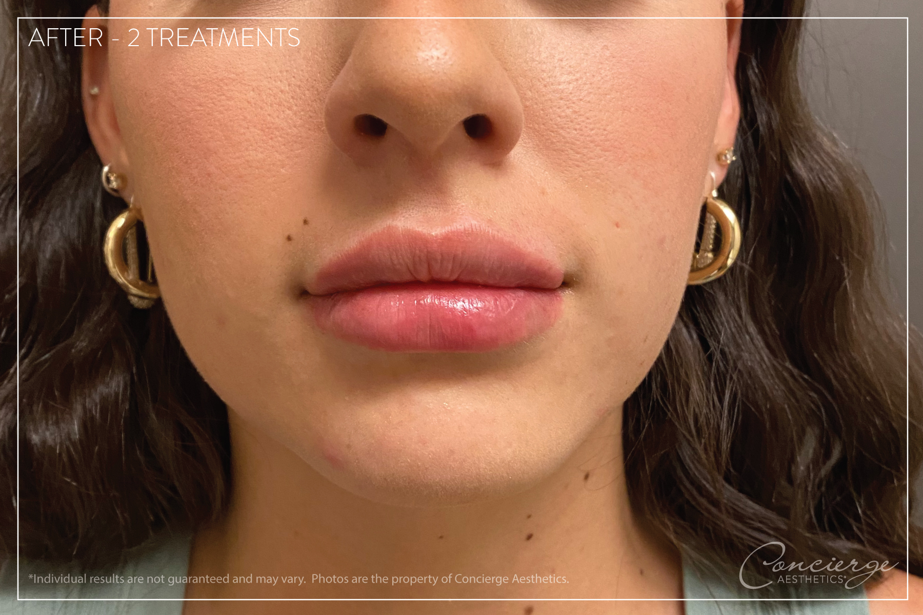 Juvederm® Ultra - Lips Before and After - Concierge Aesthetics - Irvine