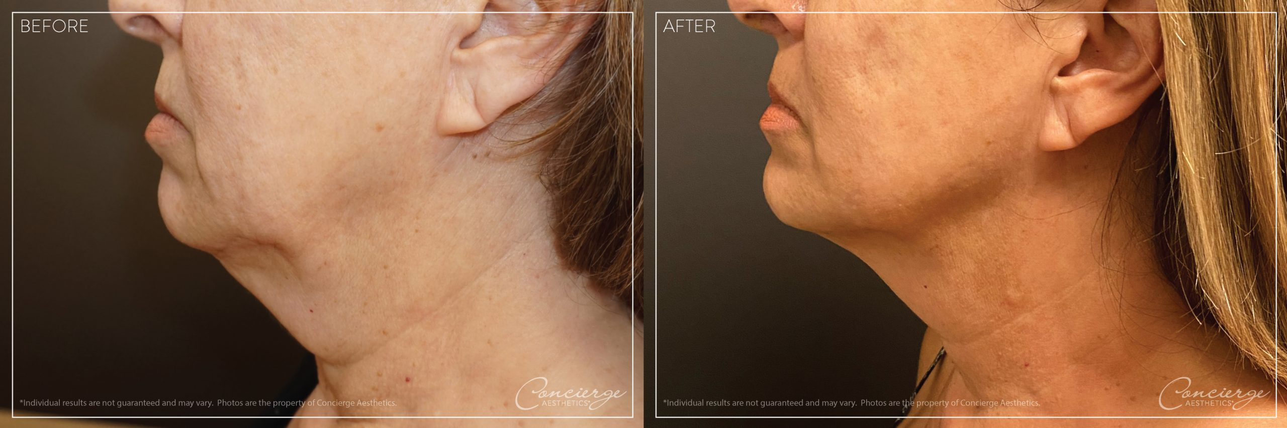 InstaLift - Before and After Photo - Concierge Aesthetics - Irvine