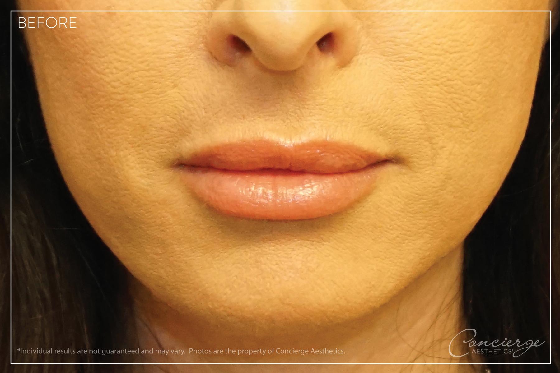 JUVÉDERM® Ultra - Lips Before