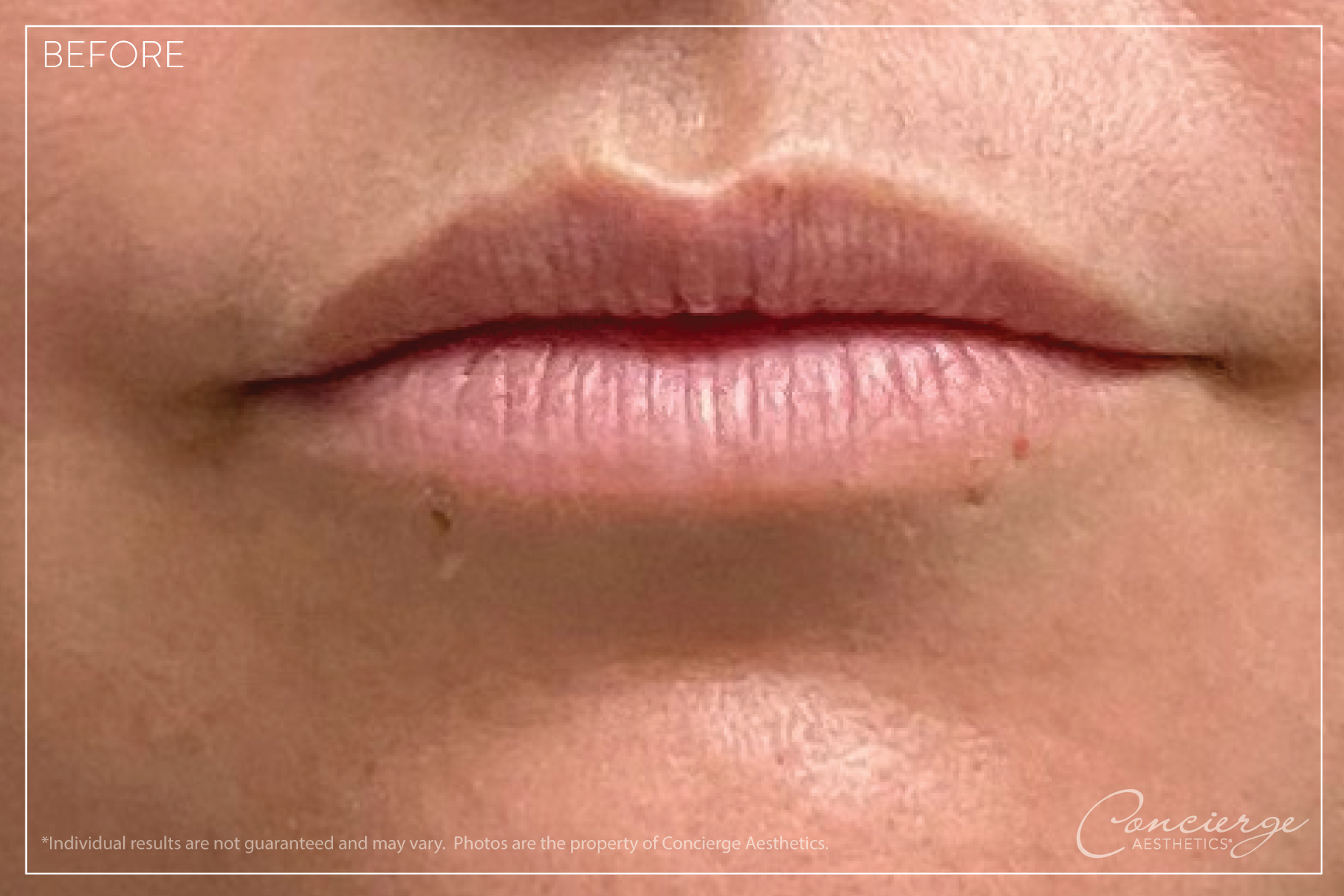 JUVÉDERM® Ultra - Lips Before and After