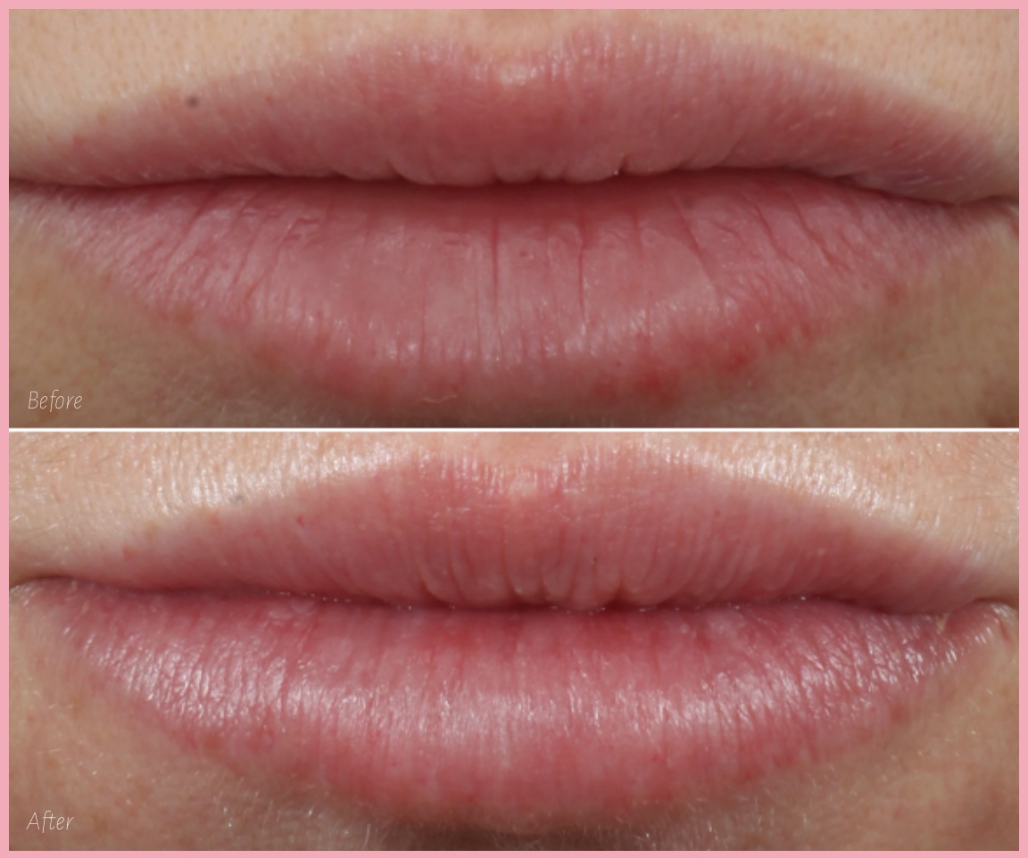Before And After Photo - Restylane Kysse Lip Filler | Concierge Aesthetics - Irvine (Orange County)