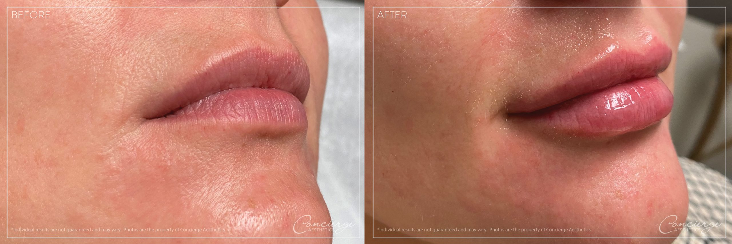 Before and After - Restylane Kysse - Concierge Aesthetics - Irvine (Orange County)