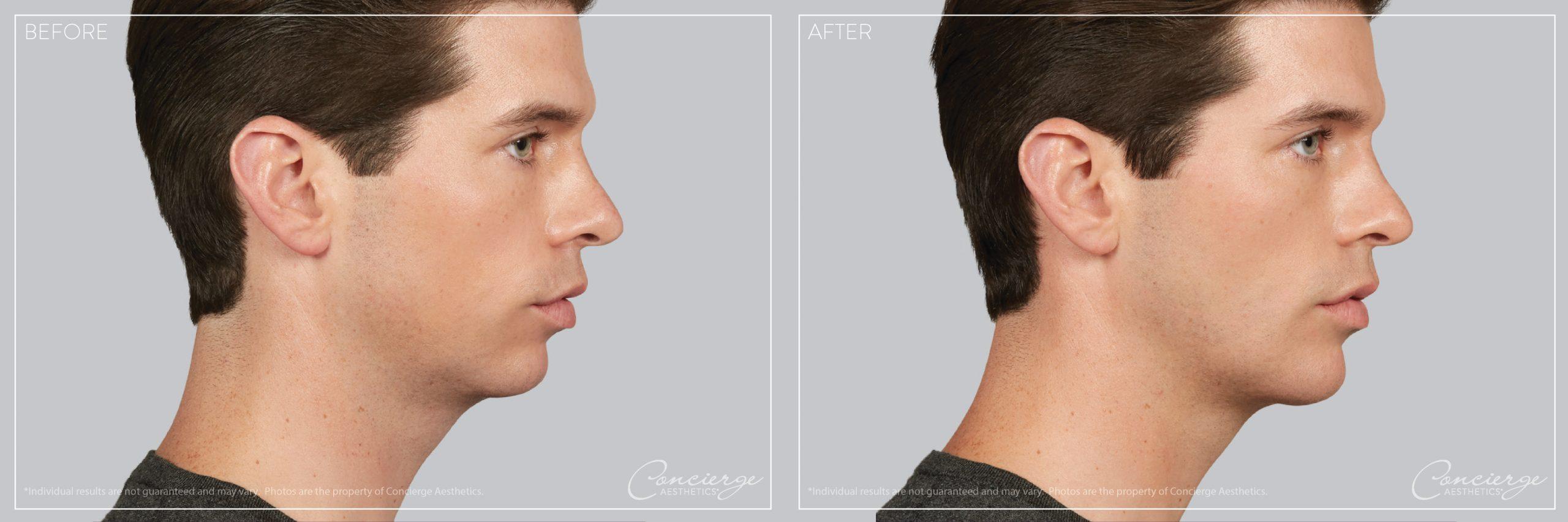 Before and After Photo - Juvederm Voluma - Chin - Concierge Aesthetics - Irvine (Orange County)