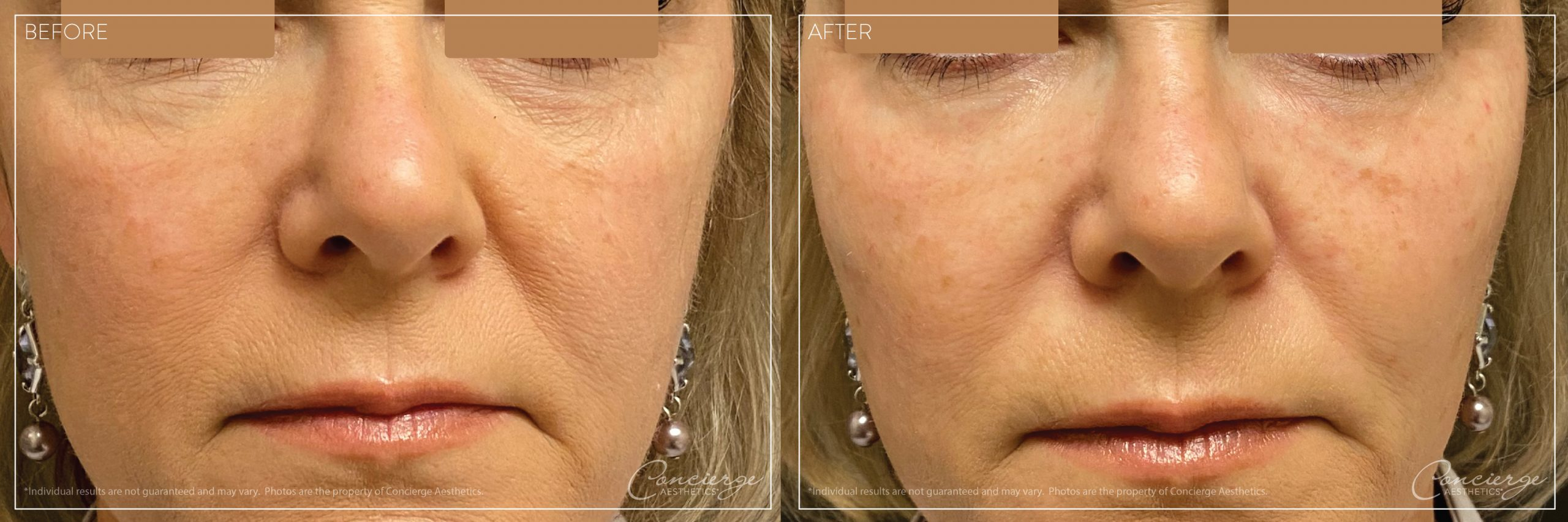 Cheeks and Under Eyes - Voluma and Volbella - Before and After Photo - Concierge Aesthetics