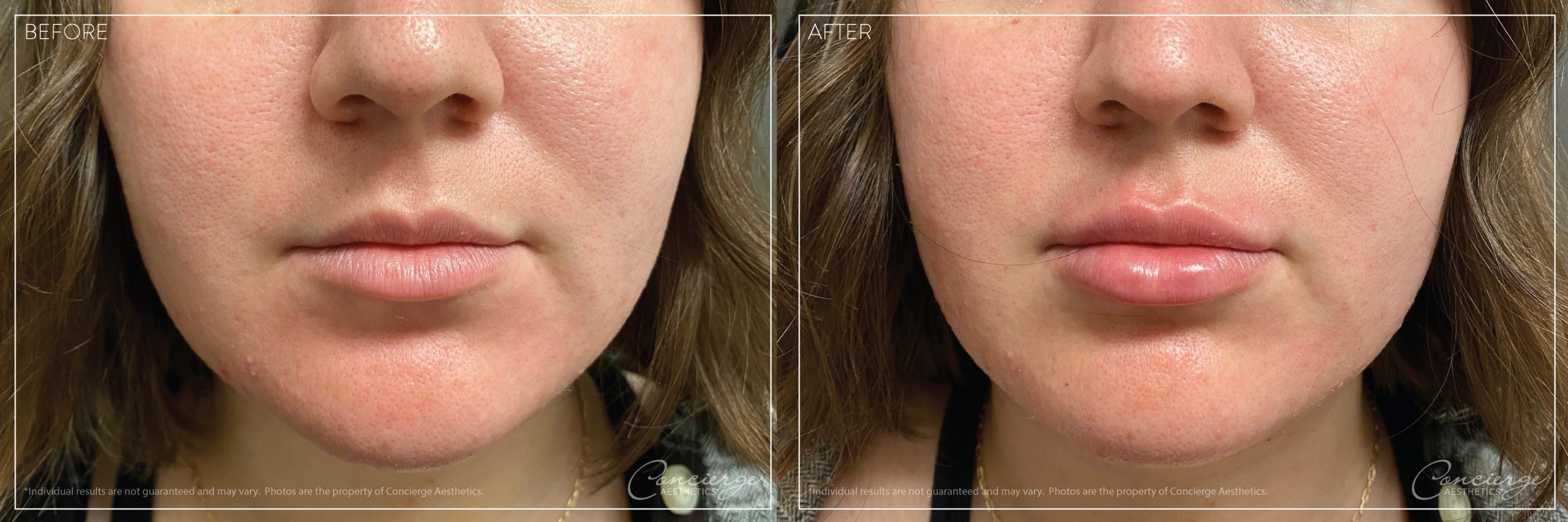 JUVÉDERM® Ultra - Lips - Before and After | Concierge Aesthetics - Irvine