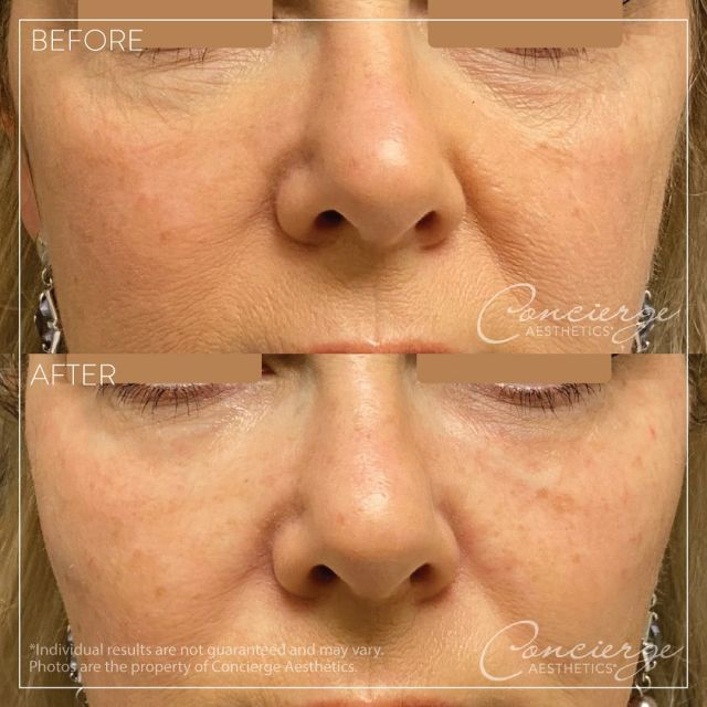 "💜 Before/After - Under Eyes and Cheeks 💜 . This beautiful 50-year old female wanted to ""freshen up her look"" and ""do whatever was needed to do that in the most natural way"".   (1) Syringe of JUVÉDERM Volbella via a cannula was used under her eyes to fill in the hollows and (2) Syringes of JUVÉDERM Voluma were used in her cheeks to lift her lower face and provide more definition. . She's thrilled with the results and she said she wished she had done it sooner! . To discover what makes us one of the top medical aesthetics practices in Orange County, contact us today for a free consultation. . Leave Concierge Aesthetics with confidence and peace of mind that your results will be natural and gorgeous. . 👩🏻‍⚕️ Susie Ergun, PA ☎️ (949) 910-1609 📧 info@ca-oc.com 💻 www.ca-oc.com 🌎 Irvine, California, USA . #conciergeaesthetics #bestmedspaoc #irvine #orangecounty #skincare #skin #oc #antiaging #weloveourpatients #beauty #naturalresults  #juvederm #juvedermvolbella #glowup #undereyes #volbella #cheeks #juvedermvolluma #volluma"