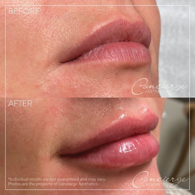 💜 Before/After - Restylane Kysse - Lips 💜 . 35 year old female looking for more pout in her lips. Restylane Kysse was the perfect choice for her lips, adding more definition and shape, as well as volume. She's excited to have fuller lips and feels the proportions of her face are more balanced. . To discover what makes us one of the top medical aesthetics practices in Orange County, contact us today for a free consultation. . Leave Concierge Aesthetics with confidence and peace of mind that your results will be natural and gorgeous. . 👩🏻⚕️ Susie Ergun, PA ☎️ (949) 910-1609 📧 info@ca-oc.com 💻 www.ca-oc.com 🌎 Irvine, California, USA . #conciergeaesthetics #mothersday #weloveourmommies #weloveourpatients #medspa #irvine #ocsbest #skincare #orangecounty #ocsfinest #bestoftheoc #kysse #restylane #restylanekysse #perfectpout #lips #pout
