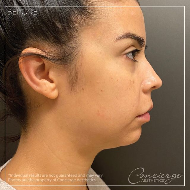 💜 Before/After - Radiesse + JUVÉDERM Voluma 💜 . The full impact of full face filler treatment for optimal results. This 30 year old female wanted more definition in her jawline. Had 2 syringes Radiesse in January followed by 2 more syringes Radiesse now in her jawline, chin and cheeks for more definition and contour in her profile. 1 syringe of Voluma added to her cheeks and chin for added impact and balance of her proportions. This helps reduce appearance of submental fullness and provides more defined and slim profile. This beautiful bride is picture ready for her upcoming wedding! . To discover what makes us one of the top medical aesthetics practices in Orange County, contact us today for a consultation. . Leave Concierge Aesthetics with confidence and peace of mind that your results will be natural and gorgeous. . 👩🏻⚕️ Susie Ergun, PA ☎️ (949) 910-1609 📧 info@ca-oc.com 💻 www.ca-oc.com 🌎 Irvine, California, USA . #conciergeaesthetics #mothersday #weloveourmommies #weloveourpatients #medspa #irvine #ocsbest #skincare #orangecounty #ocsfinest #bestoftheoc #juvedermuvoluma #voluma #jawline #chin #radiesse #cheeks #weddingready